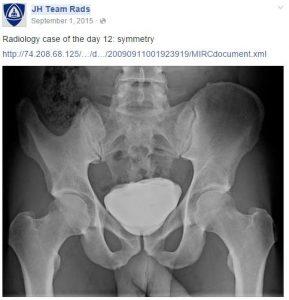 x-ray of a human pelvis