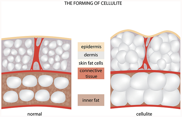 diagram of cellulite cells shows that cellulite forms when there is an excess of fat cells in the skin